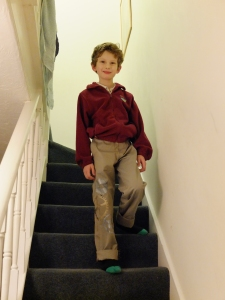 "He dubbed them his ""mechanical leg"" trousers"